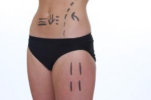 Abdominoplastie à Lyon - Chirurgie esthétique du ventre (abdomen)