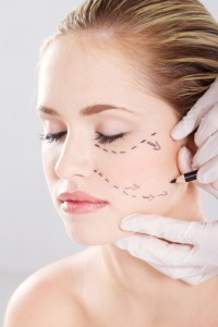 Lipostructure du visage Lipofilling à Lyon - Cerne lèvre joue pommette