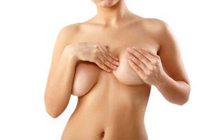 Réduction mammaire à Lyon - Chirurgie hypertrophie mammaire