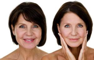 Chirurgie du visage à Lyon - Docteur Nicolas Gounot