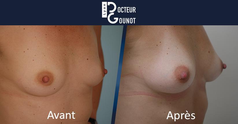 Avant / Après d'un Lipomodelage des seins